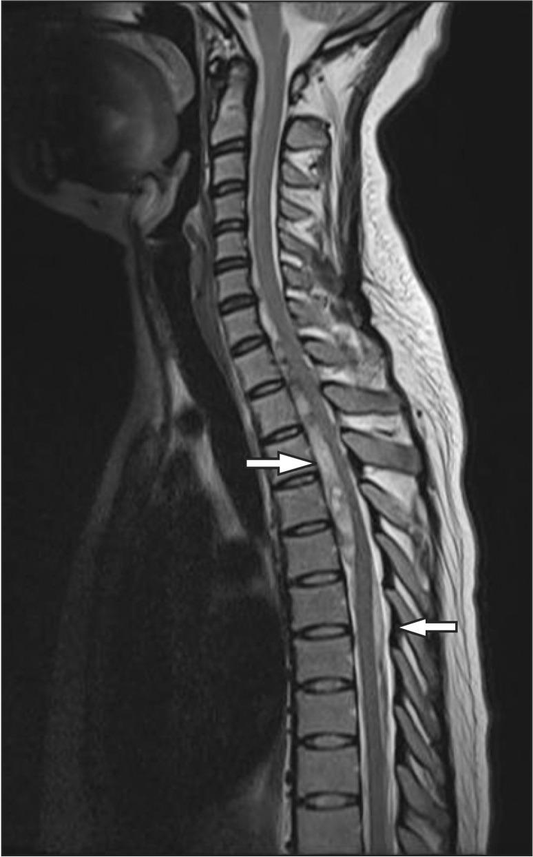 Hematoma radiology subdural Spinal subdural